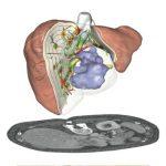 Perangkat Lunak Membantu Kelancaran Pengangkatan Tumor dari Hati